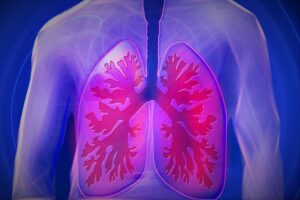 lungs and respiratory system - radon gas cause lung cancer-800