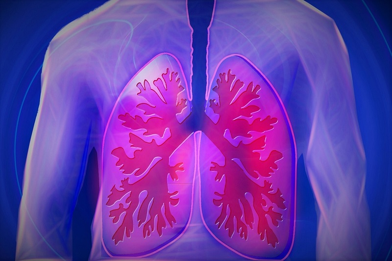 Graphic of human lungs | radon gas cause cancer | Radon-Rid, LLC